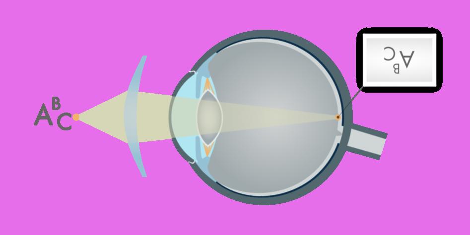 51pdid1-ak-presbiopija-su-akiniais_4850-c68a1633d20e877a0359497e41da5e3c.png