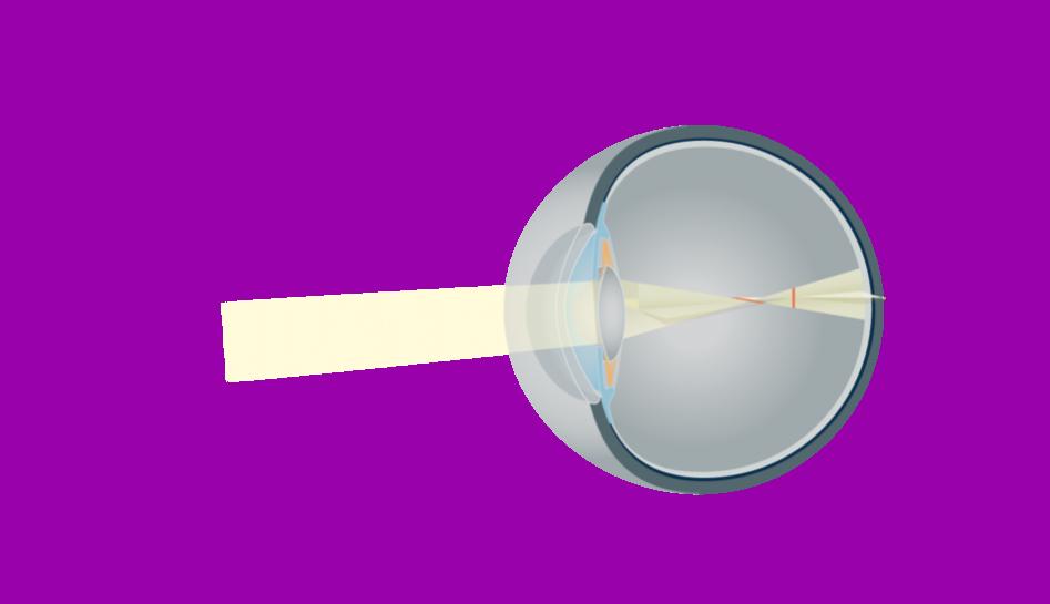 98pdid1-ak-astigmatizmas-be-akiniu_2623-bd4082a0f60a6edee2a700277935143c.png