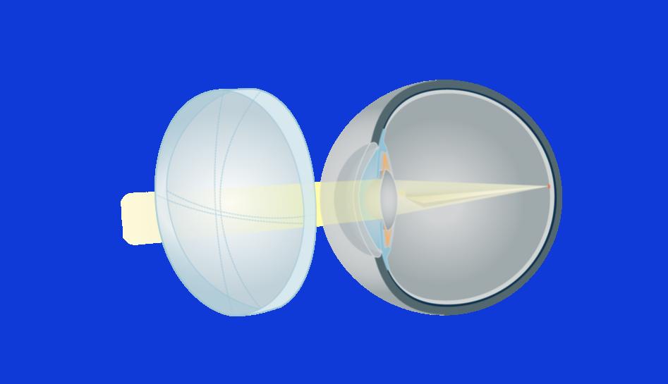 98pdid2-ak-astigmatizmas-su-akiniais_6582-b6095c44a897d3bb2f93e21e97000894.png